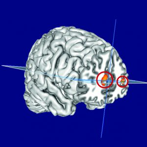 In lucid dreamers compared to other people, the prefrontal cortex enabling self-reflection is bigger. (c) MPIB