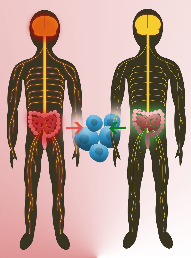 Intestinal flora from twins is able to initiate multiple sclerosis ...