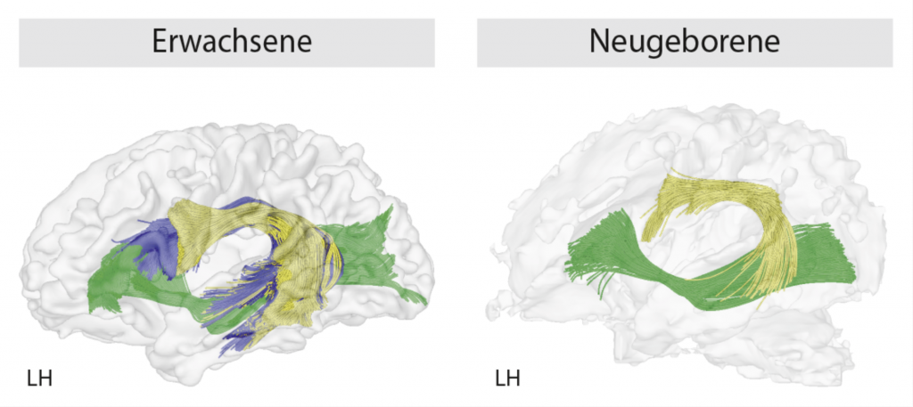 The brain and its several areas that process language mature at a different pace: The bundle of axons known as fasciculus arcuatus is not fully developed until we reach adulthood - when its short structure (yellow) is completed by a long part (blue). Only then can this nerve bundle can send information from the Broca area to the Wernicke area so that we can process complex grammatical sentences. LH = left side of the brain.